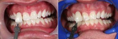 whitening-beforeafter1