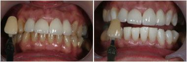 whitening-beforeafter2