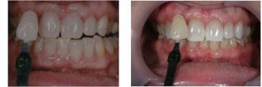 whitening-beforeafter4